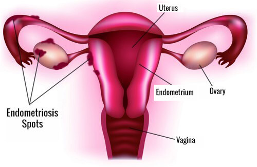 The Main Symptoms of Endometriosis