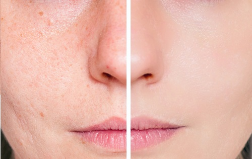 Natural remedies for facial acne
