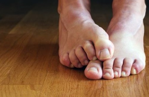 Simple Remedies for Nail Fungus