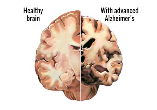 Detecting Alzheimer's Early