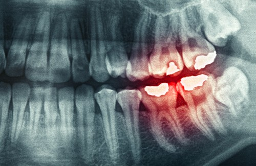 What Is Bruxism and How to Treat It