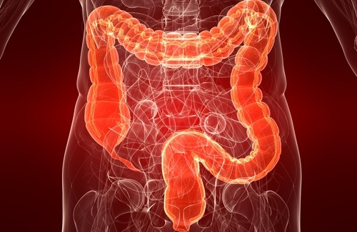 Get Relief From Colitis, Naturally