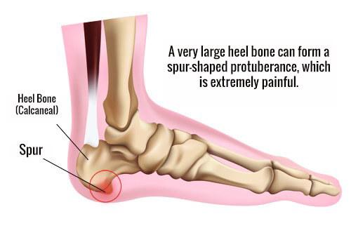 How to Prevent Heel Spurs