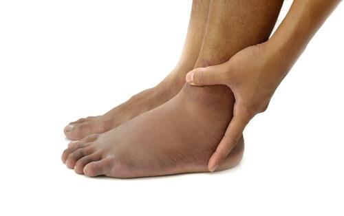 Injured-foot