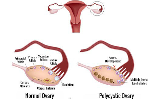 Polycystic Ovary Syndrome and Its Treatment