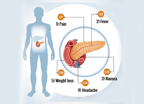 6 Important Signs of Pancreas Problems