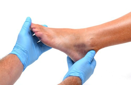 The Main Causes of Swelling in The Feet and Ankles