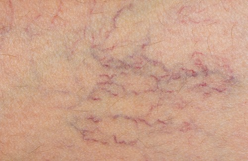 Combat Varicose Veins With Indian Horse Chestnut