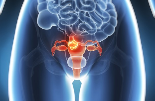 Uterine Cancer: Preventable 60 Percent of the Time