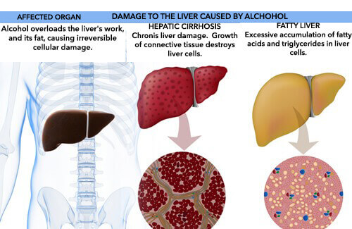How The Body Is Affected By Alcohol