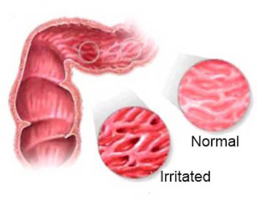 Irritable Bowels? Avoid These Foods!