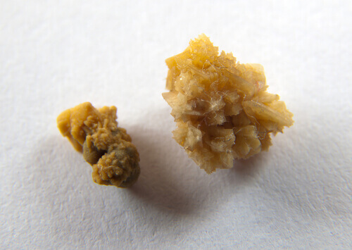 Learn How to Prevent Kidney Stones