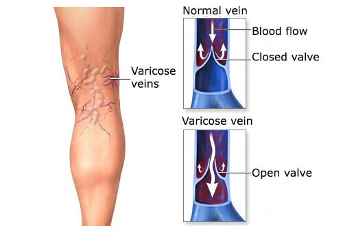 Soothe the Pain of Varicose Veins