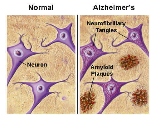 Foods That Protect You From Alzheimer's