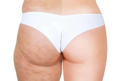 The 6 Foods That Give You Cellulite