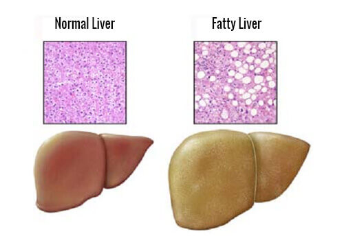 Fatty Liver: Foods That You Should Avoid