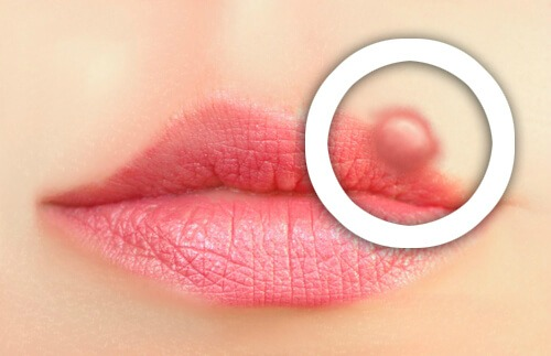 How to Prevent Oral Herpes