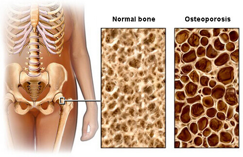 Prevent Osteoporosis With Diet