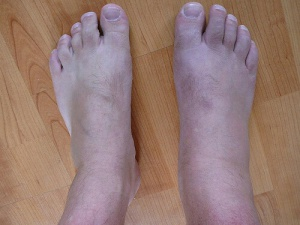 Feet with gout