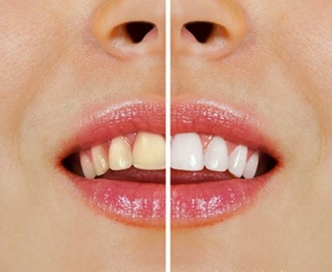 Natural Products to Whiten Your Teeth