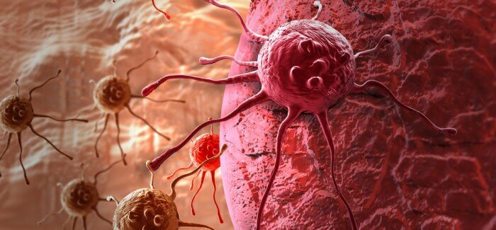 Possible Symptoms of Cancer in Women