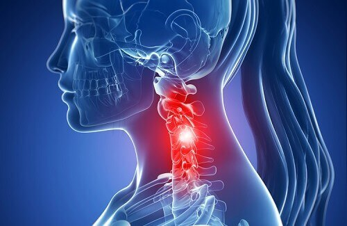 Relieving Your Neck Problem