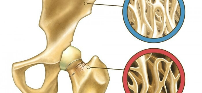 How to Naturally Prevent Osteoporosis