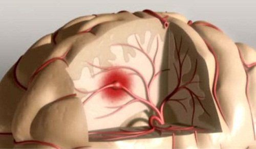 How to Prevent Strokes