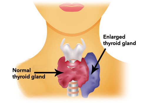 Overactive thyroid gland