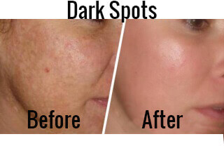Get Rid of Dark Patches