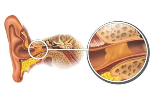How to Naturally Remove Earwax