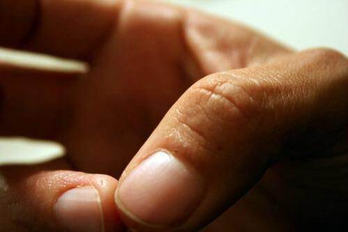 eczema conditions