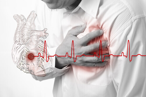 heart-attack-2