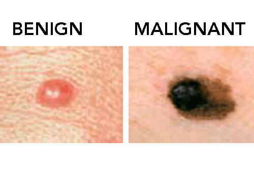 Everything You Should Know About Moles