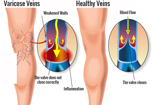 Home Exercises to Combat Varicose Veins