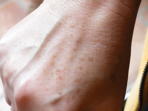 Diminish or Hide Age Spots and Freckles on Hands