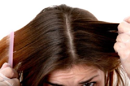 2-greasy-hair-9