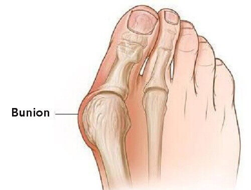 Take Steps to Prevent Bunions