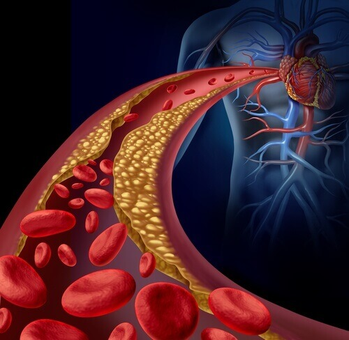 Lower Triglycerides Naturally