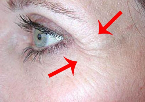 Causes and Remedies for Crow's Feet