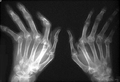 How to Treat Rheumatoid Arthritis
