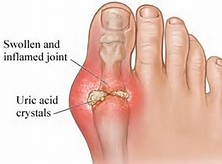 The Dangers of Uric Acid and How to Avoid Them