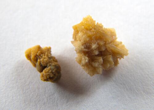 urine 4