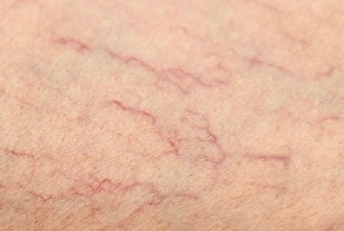 Easy Treatments for Spider Veins on Legs