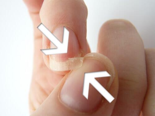 5-brittle-nails-8