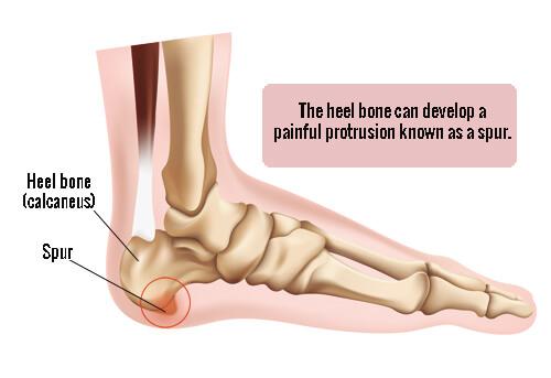 Foot diagram
