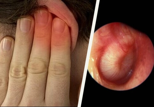Natural Treatments for Ear Infections
