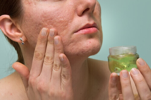 How to Eliminate Acne Marks Naturally