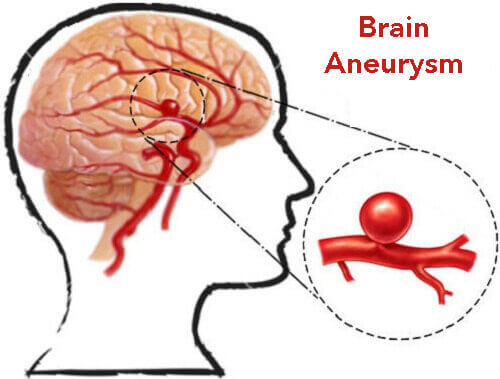 How to Prevent Brain Aneurysms