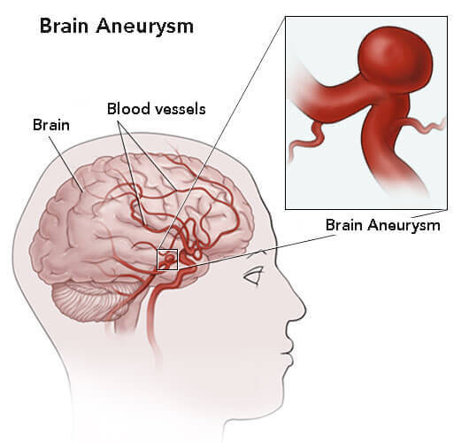 Location of aneurysm